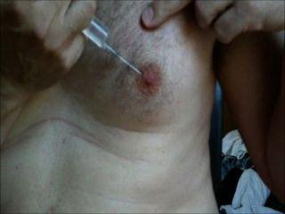 Inyección salina de los pezones