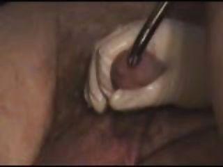 Sonidos extremos de la uretra