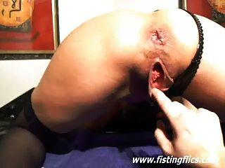 Inyección de fisting extremo y inserciones uretrales