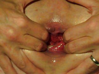 culo relleno agua globo ana boquiabierto inserción extraña