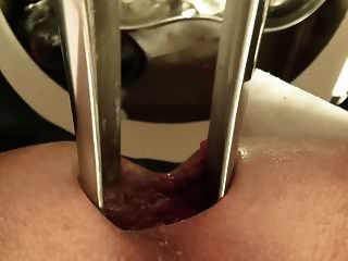 espéculo gigante, anal de cerca, super enfermera, doctor